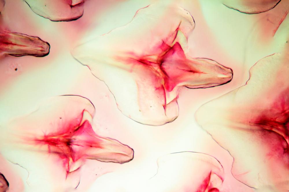 Микрофотография плакоидных чешуек