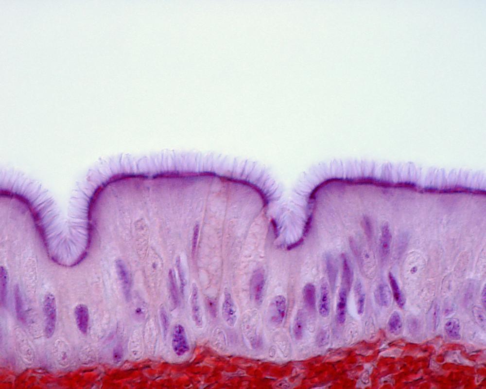 Ресничный эпителий трахеи