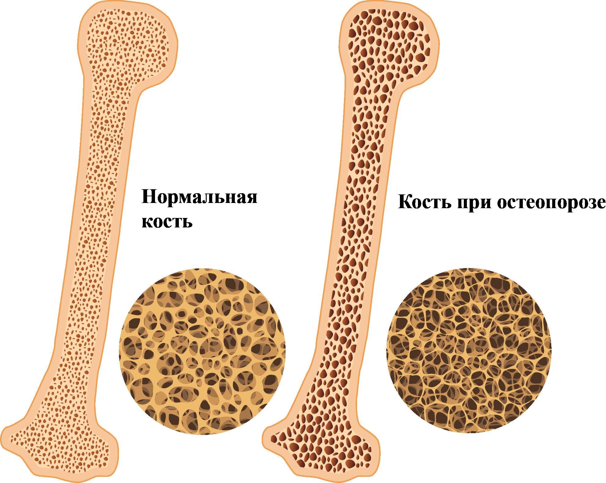 нормальная кость и кость при остеопорозе