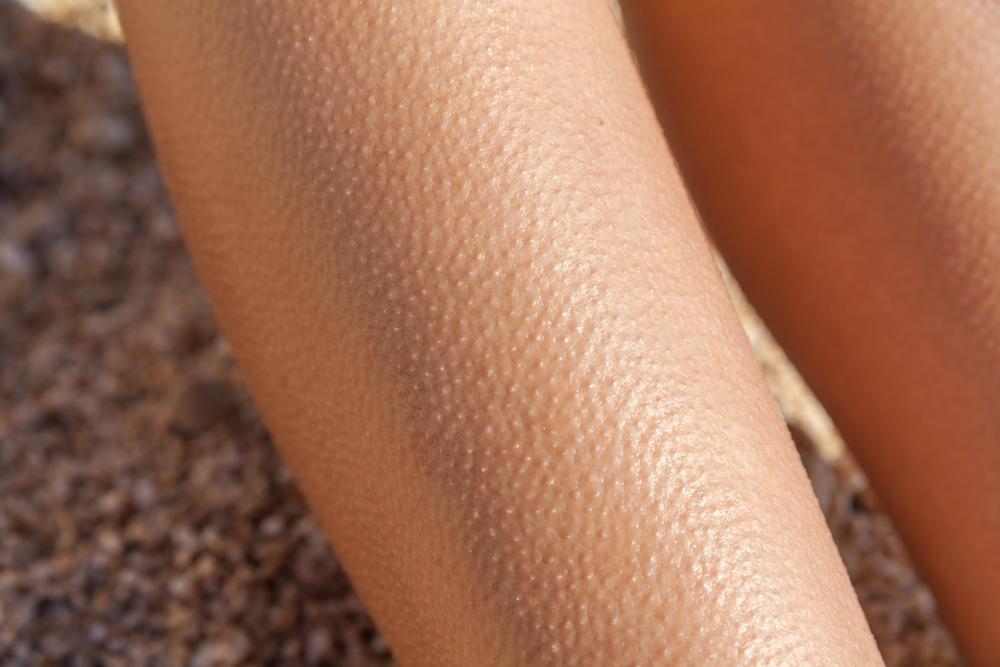 волосы на коже