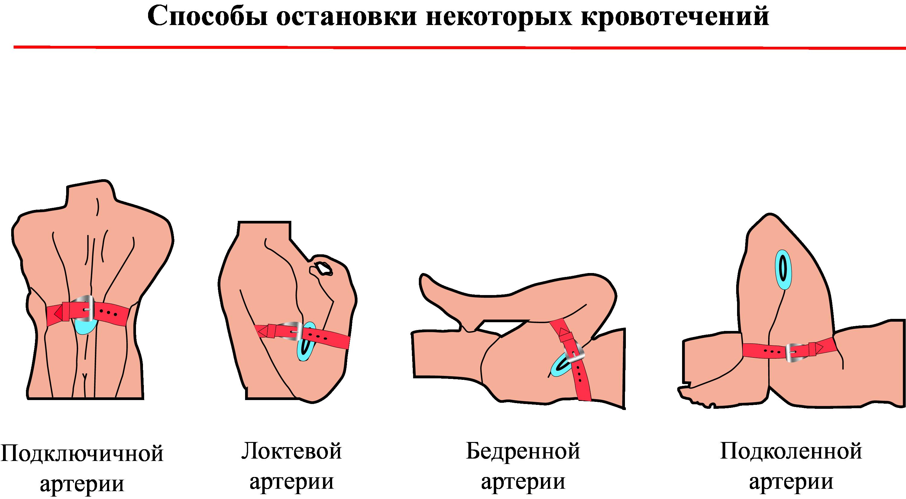 Способы остановки некоторых кровотечений