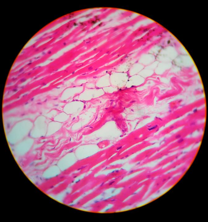 Микроскопическое строение тимуса
