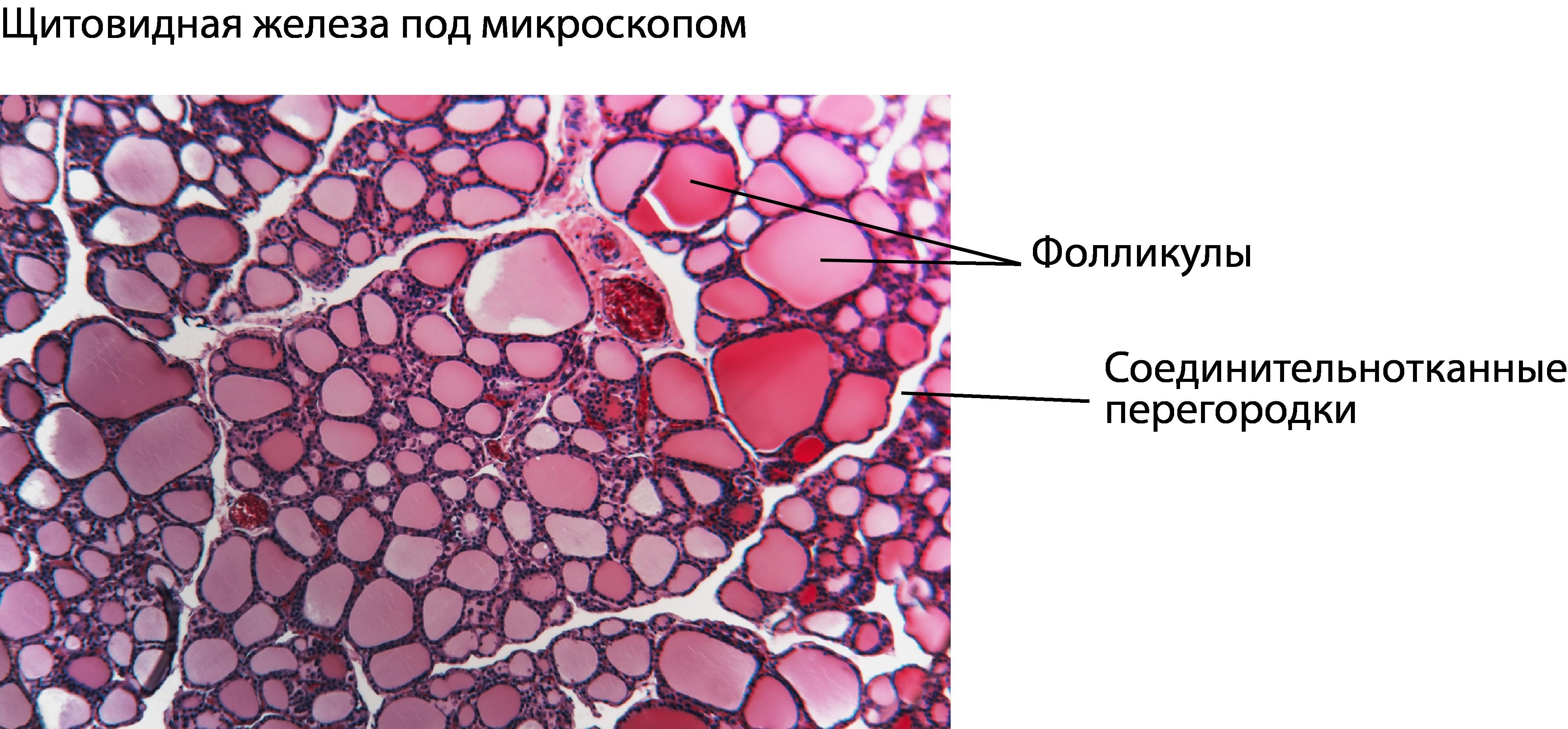 Щитовидная железа под микроскопом