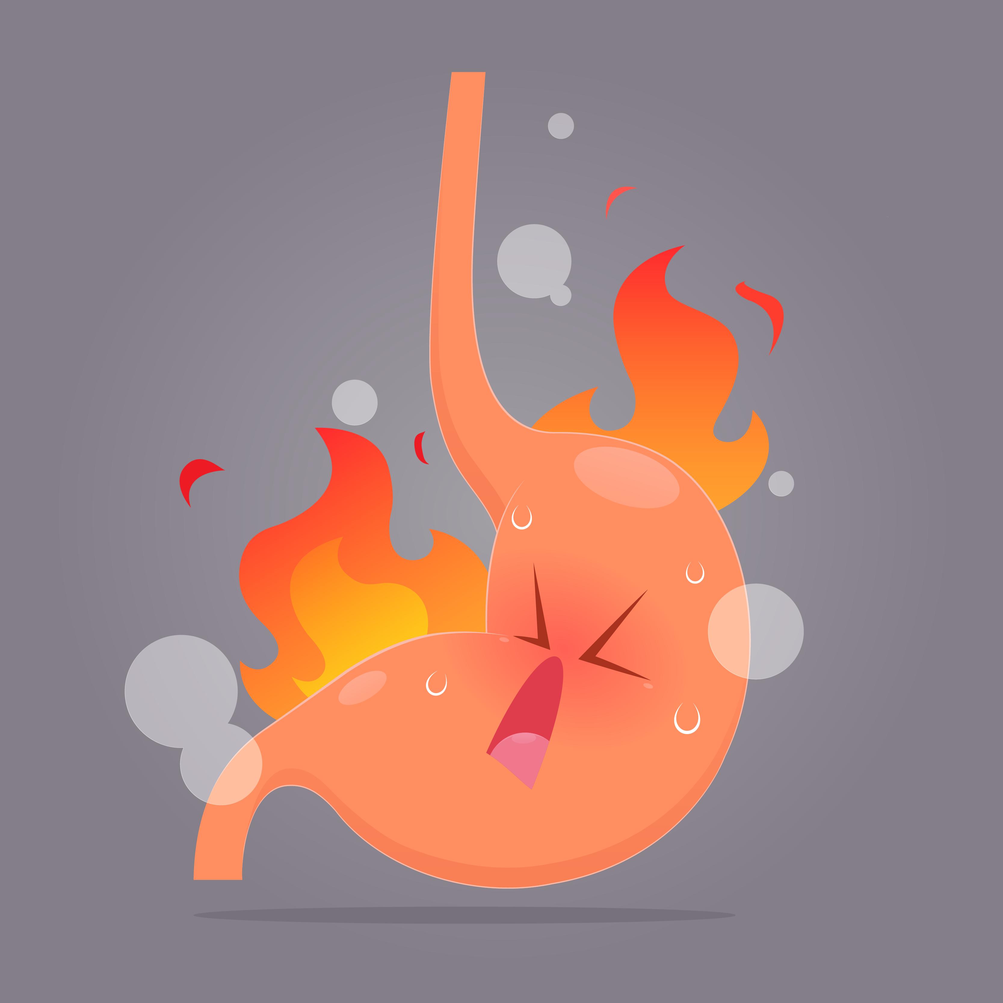 Изменение концентрации соляной кислоты в желудке приводит к гастриту